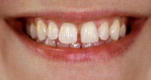 Niềng răng thưa có đau không?